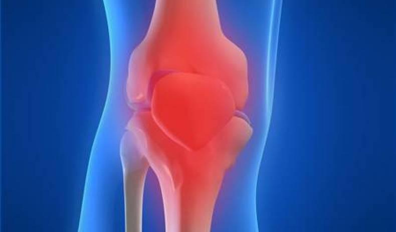 Arthrose – Gelenke in Gefahr!