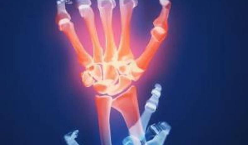 Arthrose – Sich bewegen oder Gelenke schonen? Sind Sie in Gefahr?