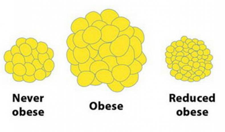 DO THE FAT CELLS DISAPPEAR WHEN WE LOSE WEIGHT?