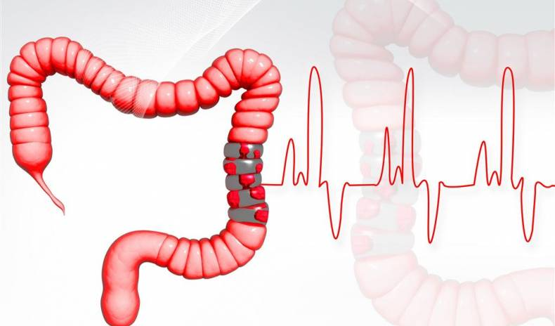COLON HYDROTHERAPY - EFFECTIVE NATURAL TREATMENT