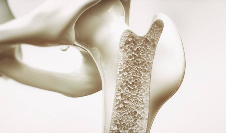 HOW TO PROTECT BONES FROM OSTEOPOROSIS: TIPS FROM HEALTH SPA EXPERT