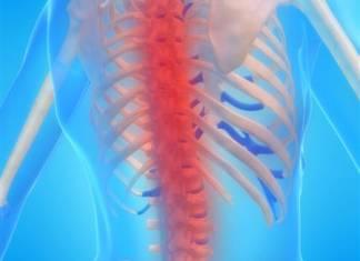 Der ewige Kampf gegen Rückenschmerzen