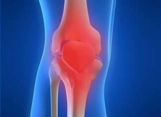 Osteoarthritis – your joints in danger!