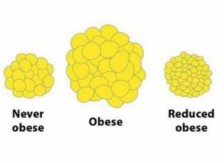Verschwinden beim Abnehmen die Fettzellen?