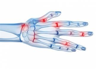 HEALTH ADVICE: RIGHT DIET FOR RHEUMATOID ARTHRITIS
