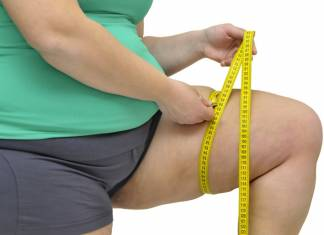 OBESITY: MEDICAL WEIGHT LOSS PROGRAMS IN THE CZECH REPUBLIC